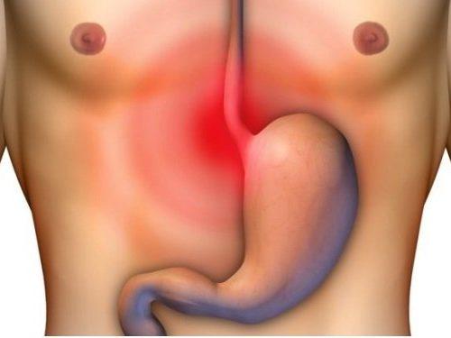 Упражнения при опущении кишечника и желудка