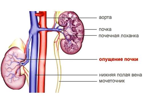 ЛФК при нефроптозе