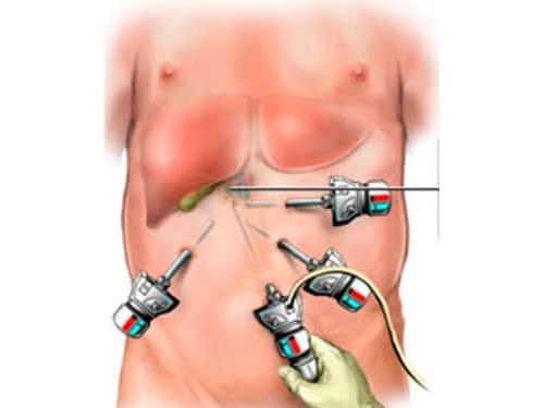 Удаление желчного пузыря: альтернативы, показания, осложнения, восстановление