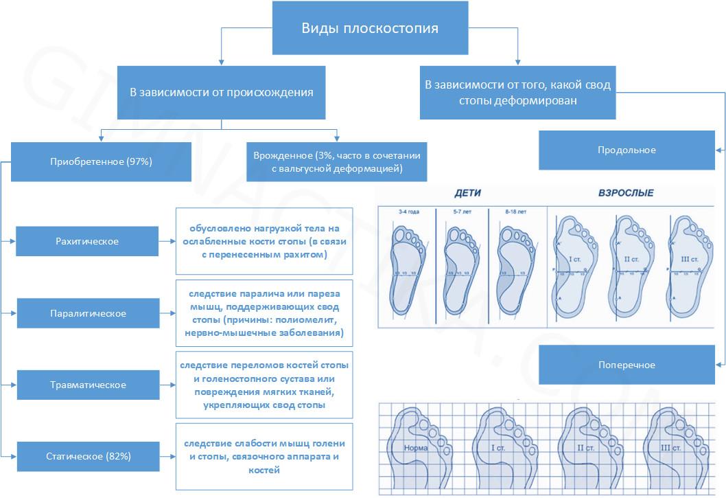 Виды плоскостопия у детей и взрослых
