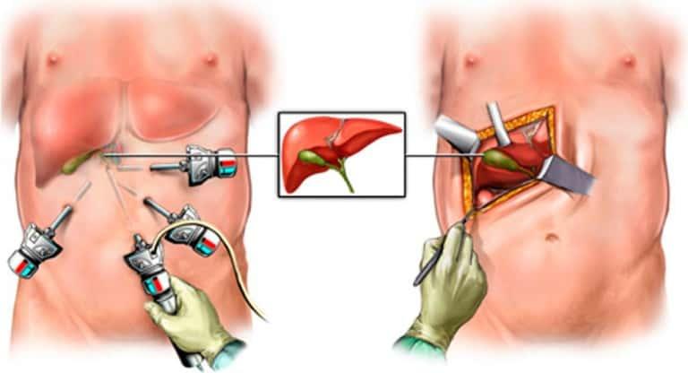 Лапароскопия и лапаротомия