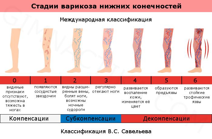 Стадии варикоза ног